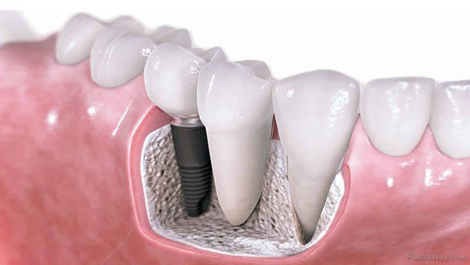Definizione Di Implantologia